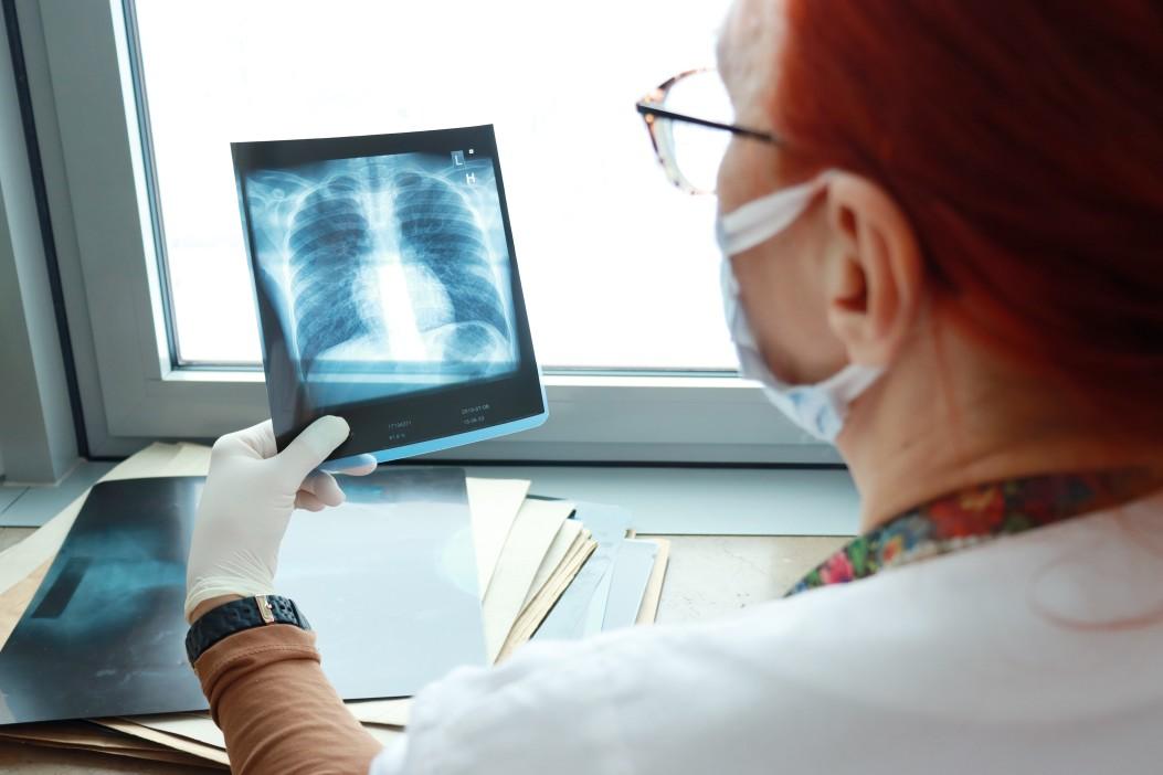 aposentadoria especial para profissionais da saude - mulher analisando raio-x